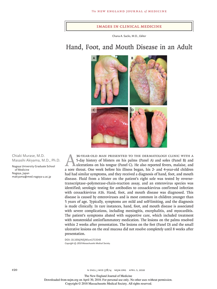 Hand Foot and Mouth Disease in an Adult